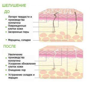 Химический пилинг (Dermaceutic,ENERPEEL)