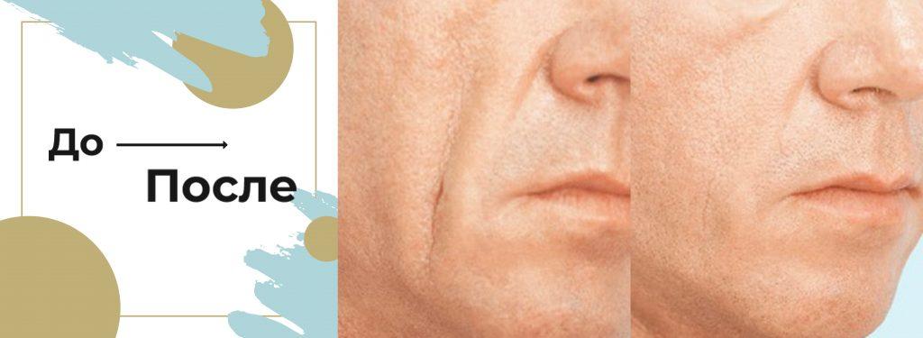 контурная коррекция глубоких морщин у мужчин